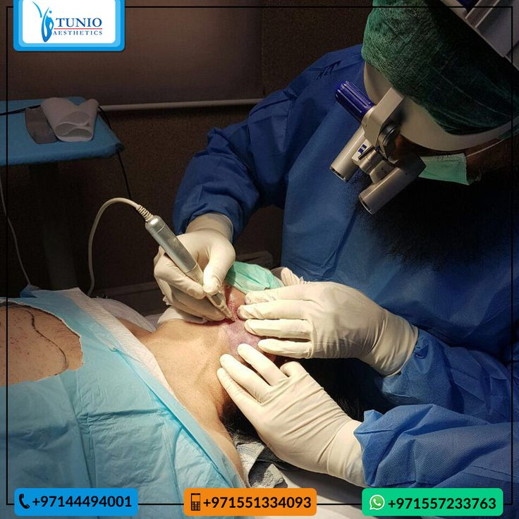 Dr Tunio performing Body Hair FUE Transplant. Harvesting grafts from Beard. Get your FUE Hair Transplant from Dr Tunio to get Natural Hairline and Amazing Results. Book An Appointment #TunioAesthetics #HairTransplant #FueHairTransplant #BodyFUE #DHCC #BestinDubai