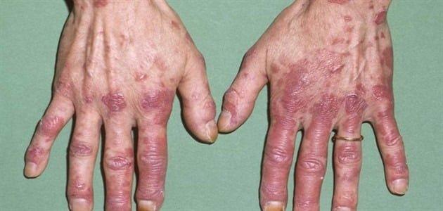 مرض الذئبة الحمراء والموت وطرق علاجه Lupus Hospital Pharmacy Marketing