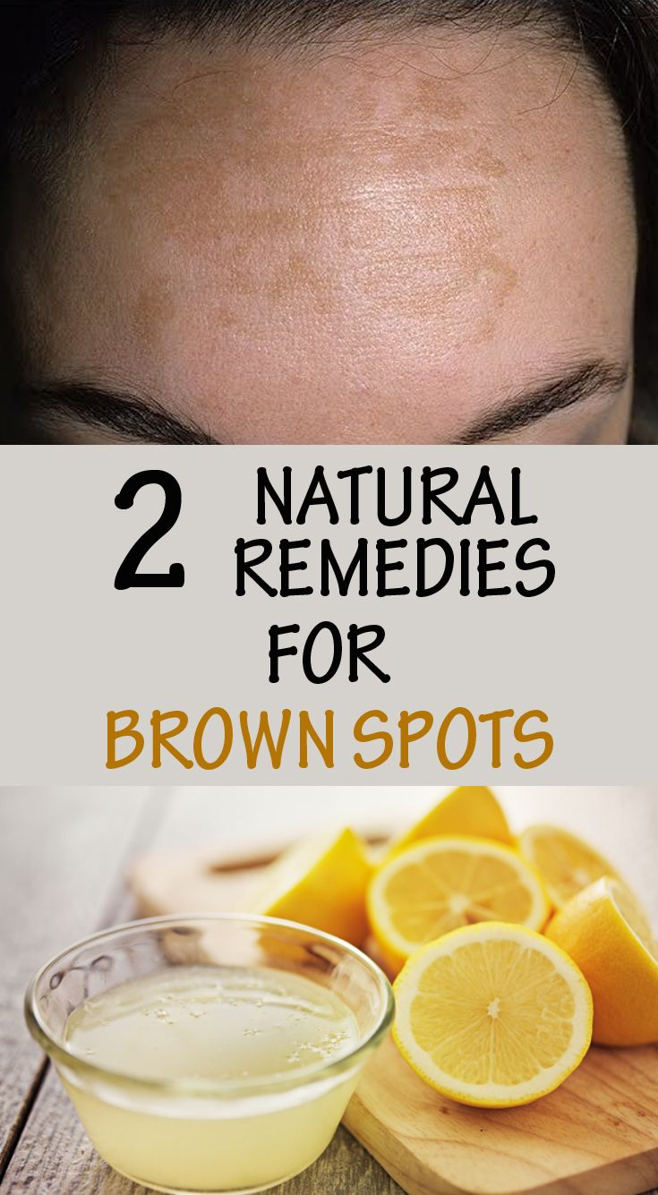 2 natural remedies for brown spots.