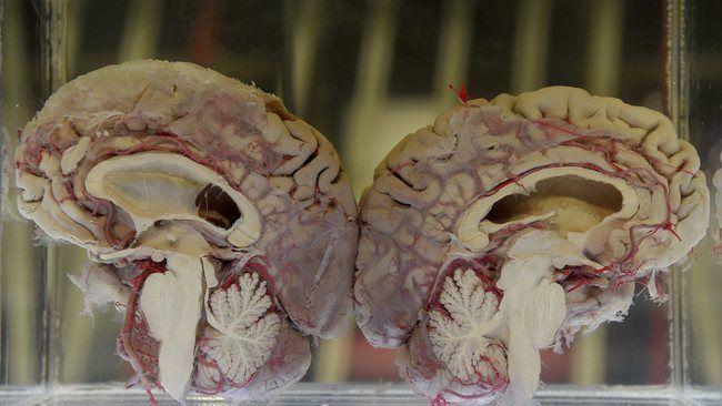 #Commotion cérébrale dans le sport: récupération plus lente qu'on ne pense - Canoë: Canoë Commotion cérébrale dans le sport: récupération…