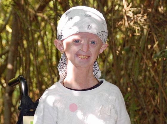 Hayley Okines Dies at 17; Progeria Campaigner Charmed Prince Charles, Justin Bieber and More  Hayley Okines