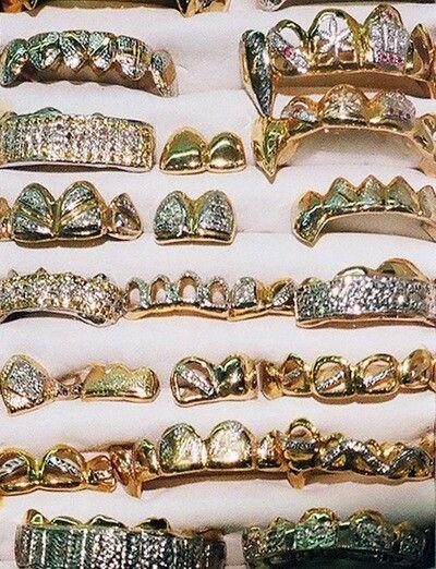Gold TEETH, awww yeeeaahhhh! ahaha Repin & Follow my pins for a FOLLOWBACK!