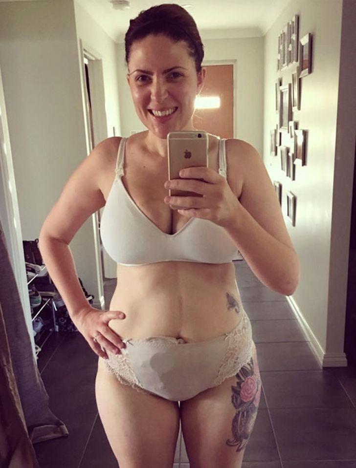 Esta mamá se está tomando selfies para mostrar cómo se vive con esta enfermedad invisible