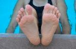 Toes that turn patriotic colors - Raynaud's disease