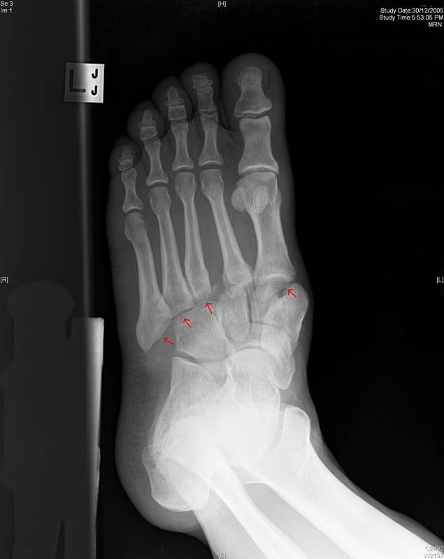 Lisfranc injury sustained from sudden twisting motion on uneven ground. Arrows point to dislocations of the tarsophalangeal joints. Rare, but extremely debilitating. Mechanismis either   1. Sudden torque on the foot (a runner falling into a hole)   2. Axial loading (e.g. rugby player with forefoot fixed on ground, dorsiflexed, and another player landing on the heel),   3. Direct Trauma (dropping heavy object onto foot), usually open fractures.