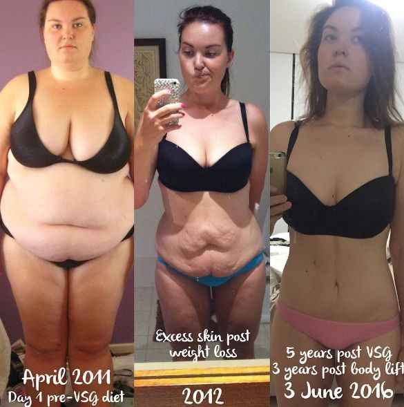 Great  Gastric Sleeve success story! Read before and after fitness transformation stories from women and men who hit weight loss goals and got THAT BODY with training and meal prep. Find inspiration, motivation, and workout tips   165 Pounds Lost: Halving My Size