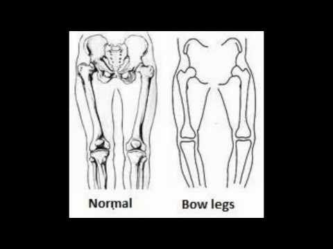 Genu Varum: Bow Legs