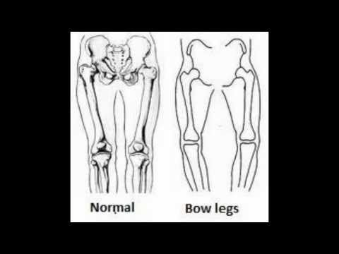 Bow Legs - Genu Varum: Bow Legs Looking for a Permanent Remedy for Bow Legs - Without the Need for Surgery?