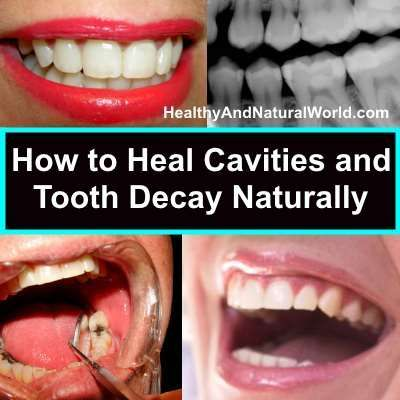 How to heal cavities and tooth decay naturally.