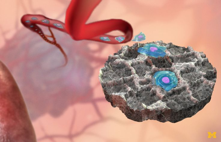 Cancer decoy could attract, capture malignant cells - http://scienceblog.com/80133/cancer-decoy-attract-capture-malignant-cells/