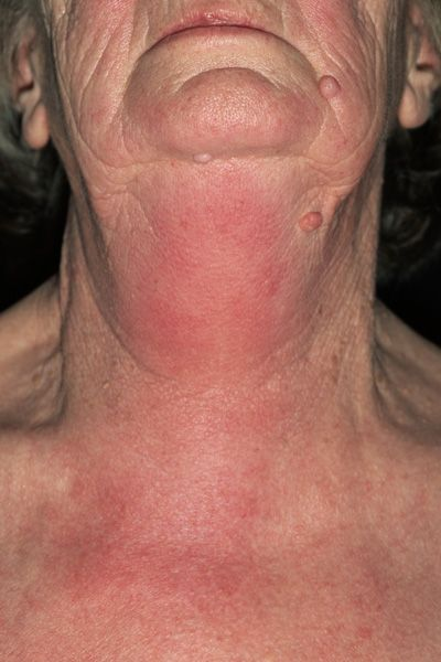 42 Best Images About Hives And Angioedema On Pinterest