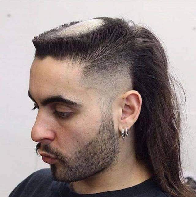 Haircut For Bald Spot On Crown Reddit With Images Top Haircuts