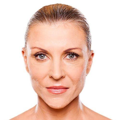 I pori restringenti cosmetici su una faccia