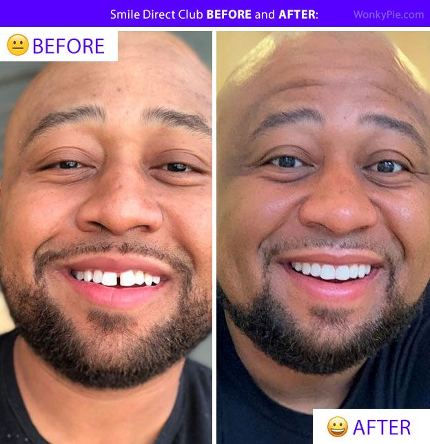 45 Smile Direct Club Before After Photos Transformation Pics Smiledirectclub Smileclubdirect Smile Direct Smiledirectclub Smile Club Direct