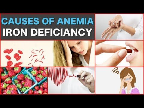 Causes of Anemia iron deficiency What Causes Anemia Iron Deficiency - WATCH VIDEO HERE -> http://bestcancer.solutions/causes-of-anemia-iron-deficiency-what-causes-anemia-iron-deficiency    *** cancer causing anemia ***   In This Video we Will Let you Know Causes of Anemia iron deficiency What Causes Anemia Iron Deficiency Causes of iron deficiency anemia According to the ASH, iron deficiency is the most common cause of anemia. There are many reasons why a person might become
