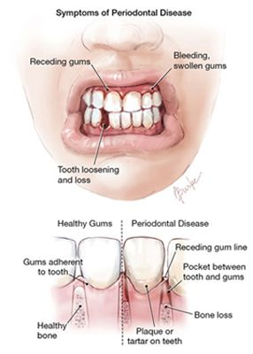 periodontal diseases in children health and social care essay Dental disease is preventable, yet dental care is the most common unmet health treatment need in children state policymakers seek creative ways to improve access to oral health care services in their states.