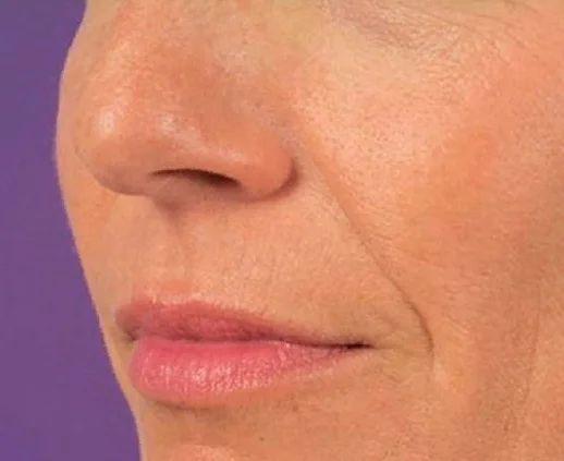Мышца поднимает губу и участвует в формировании носогубной