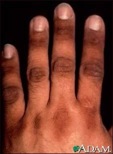 Can lead to acanthosis nigricans as can some endocrine disorders it