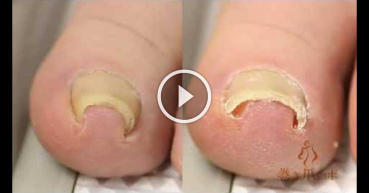 This Is By Far The Coolest Way For Dealing With Funky Toenails I Have Ever Seen!
