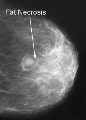 necrosis traumatic compensation fat breast