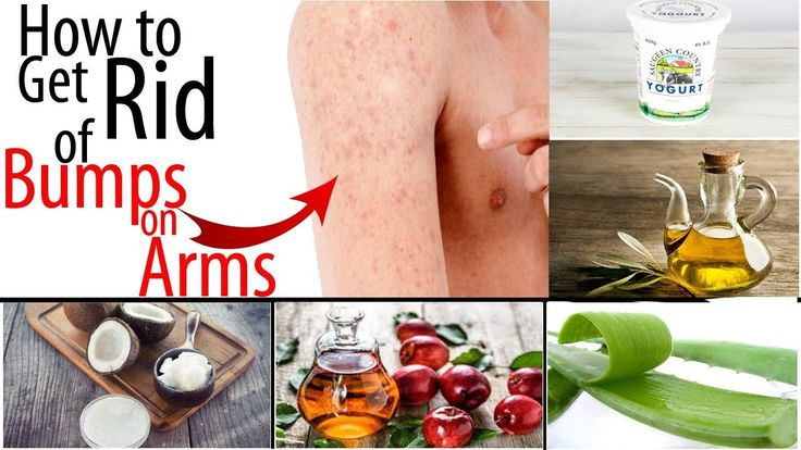 How to Get Rid of Tiny Red Bumps, Rashes from Arms, || Chicken Skin Trea...