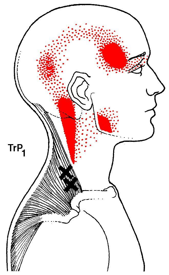 9 best TMJ/ Headache pain images on Pinterest | Anatomy, Massage and ...