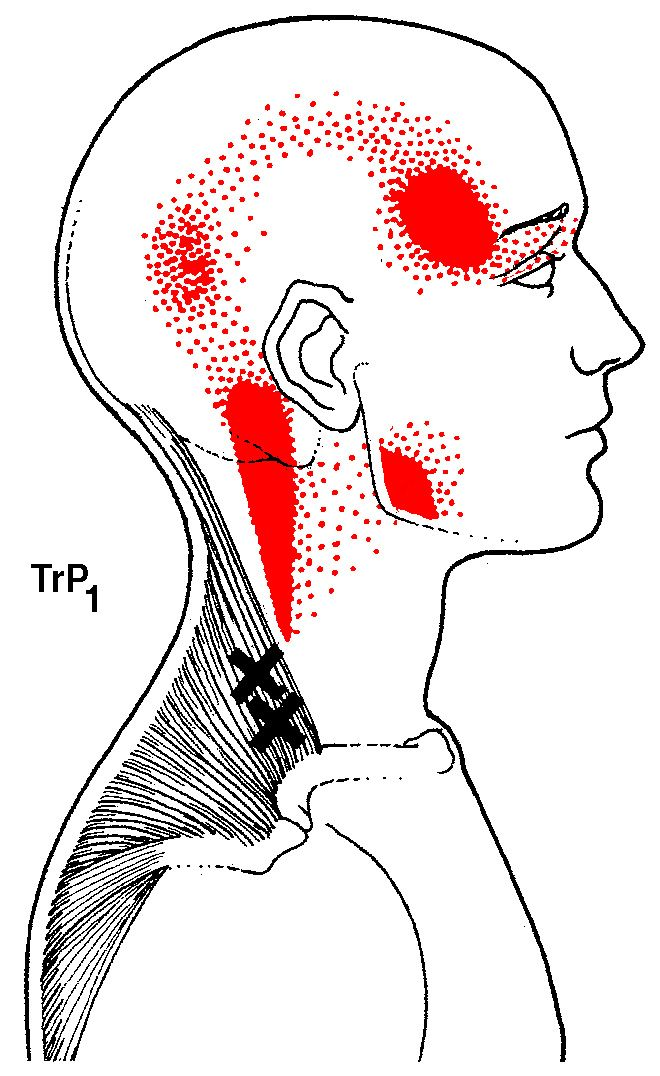 Puntos gatillo del trapecio. upper trapezius trigger point number 1 with referred pain patterns