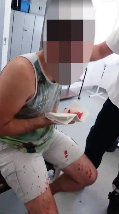 Gay Serb couple were beaten close to death in German refugee camp last week.