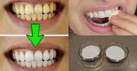 Guaranteed Teeth Whitening In Less Than 2 Minutes!   Bestgirl