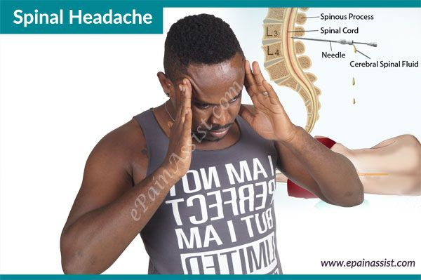 Spinal Headache or Post-Lumbar Puncture Headache  Read More: http://www.epainassist.com/headache/spinal-headache-or-post-lumbar-puncture-headache