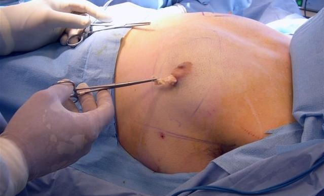 Although #women are the most popular candidate of #liposuction, but in present times, image conscious men are also opting for liposuction #treatment