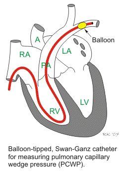 Swan- ganz Pressures Related Keywords