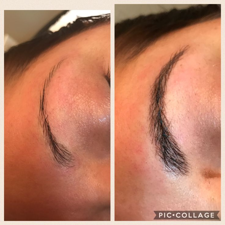 3D microblading is a semi-permanent eyebrow filler that last 9-12 months. This simple and painless procedure takes approximately one hour. The results are immediate and looks completely natural. Price starts at $200 for two sessions and the results last up to a year. Call 575-914-1948 to book your appointment.