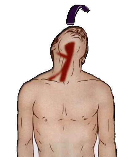 17 Best Ideas About Occipital Neuralgia Treatment On