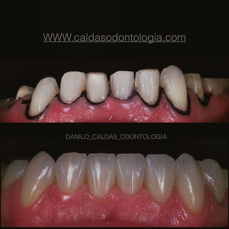 #Repost @danilo_caldas_odontologia  Ceramic veneer! TPD Eduardo Godoy #odontologiaestetica #health #saúde #estética #odontologia #makrofotografia #saude #faceta #resincomposite #resin #resina #resinacomposta #composite #veneer #dentist #dentista #odontologia #odontologiaestetica #estetica #estheticdentistry #curitiba #biomimetic @charlesmelo_odontologia  @margarida_pagani  @juarezgarcia_endodontia @dr.battilani @dentistry_forum @dentistrymyworld @instagram @goeb_odontologia #goeb_odontologia…