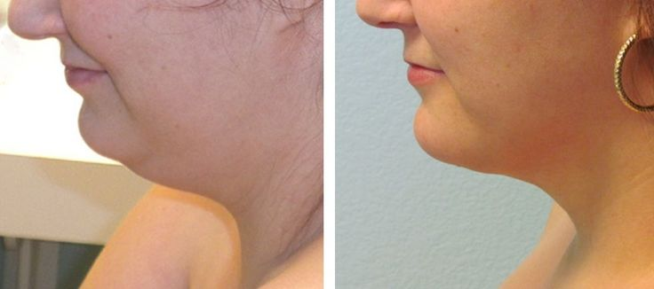 Face Exercises And Reflexology Workouts For Radiant Skin, Age-Regression, And A Younger Appearance