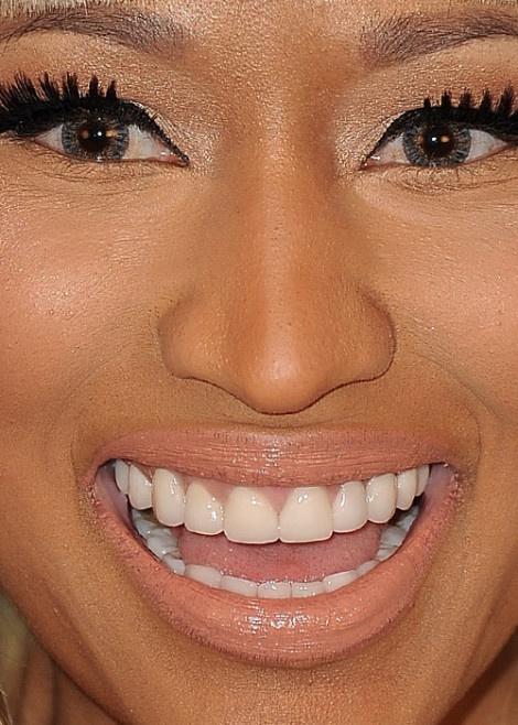 nicki minaj bad teeth wwwpixsharkcom images