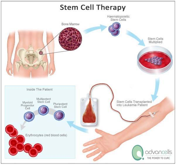 cure stem cells diseases adult