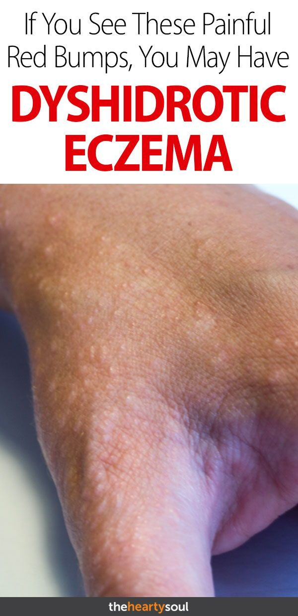 What Is Dyshidrotic Eczema And How Do You Know If You Have It