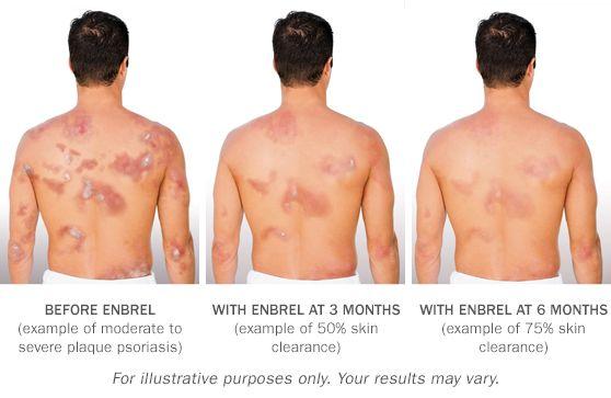 enbrel reviews for psoriasis