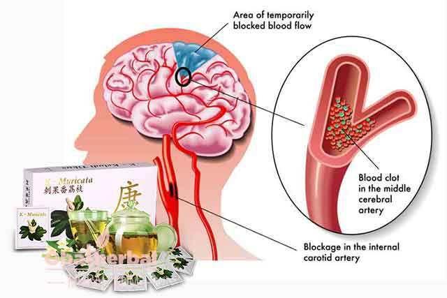 Obat Stroke Herbal Teh K-Muricata