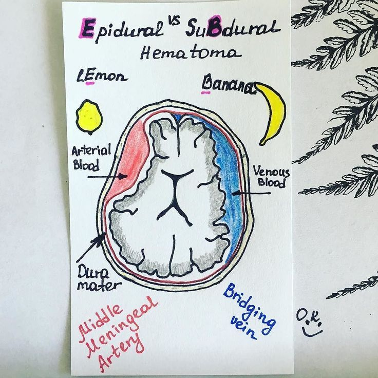 What a great way to remember! . . . . Repost: @medicine_on_indexcards I always had a very hard time remembering the differences between epidural and subdural hematoma. Thanks to @rentgen186 I found this great mnemonic device: epidural shaped like a lemon subdural shaped like a banana. Hope that helps someone else! Happy studying  Thanks @medicalmaven for sharing! . . . . #premed #prePA #pastudent #paschool #physicianassistant #medschool #medstudent #PANCE #PANRE #mcat #neuroanatomy