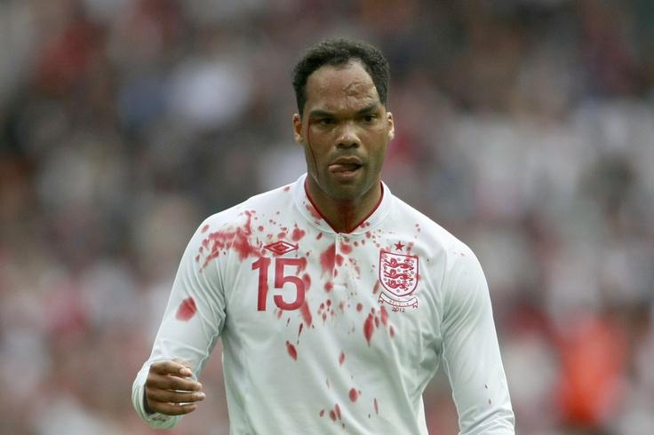 Joleon Lescott, England defender - Scarface à la Terry Butcher