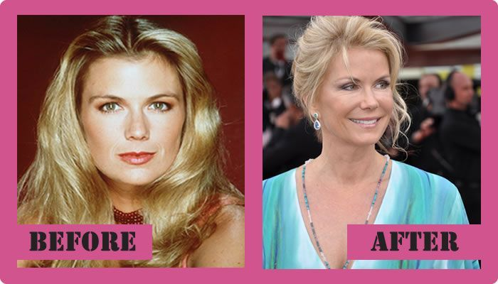 Katherine Kelly Lang Plastic Surgery - And The Rumors ...