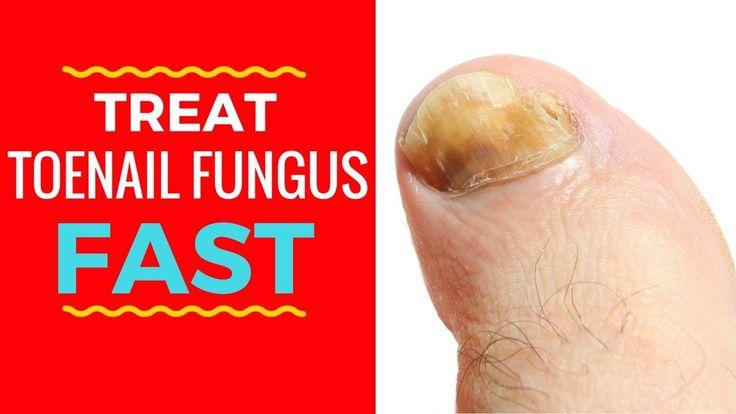 3 Quick Toenail Fungus Treatments - How To Treat Toenail Fungus Fast