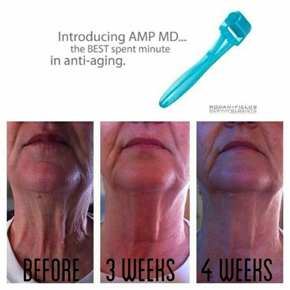 Before and Afters with Rodan + Fields REDEFINE Regimen and the AMP MD roller! Want to transform your skin while you get these products at 10% off and FREE shipping? Message me  for more information.  #redefineyourself #changingskinchanginglives #rfjourney  aprilsellers.myrandf.com