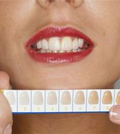 Teeth Whitening - Bleaching Risks & Rewards, & Whitening Costs