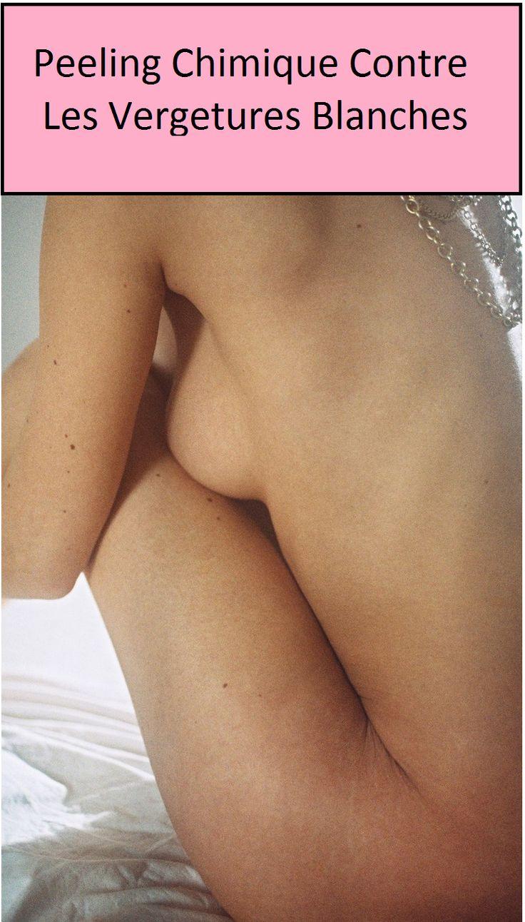 Les différentes solutions : le peeling chimique, la microdermabrasion ou dermabrasion (action mécanique), et le laser (action thermique par lumière pulsée). Les méthodes diffèrent, mais le but est le même : stimuler la production de collagènes et d'élastines en enlevant la couche superficielle de la peau pour l'obliger à se régénérer. L'abdominoplastie, parfois accompagné d'une liposuccion ou un remodelage des cuisses,