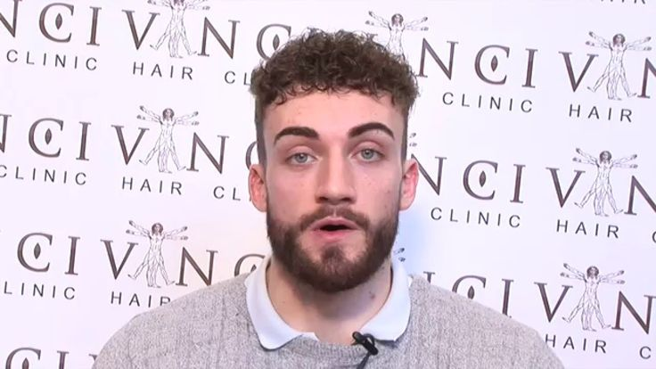 Beard Transplant by Vinci Hair Clinic