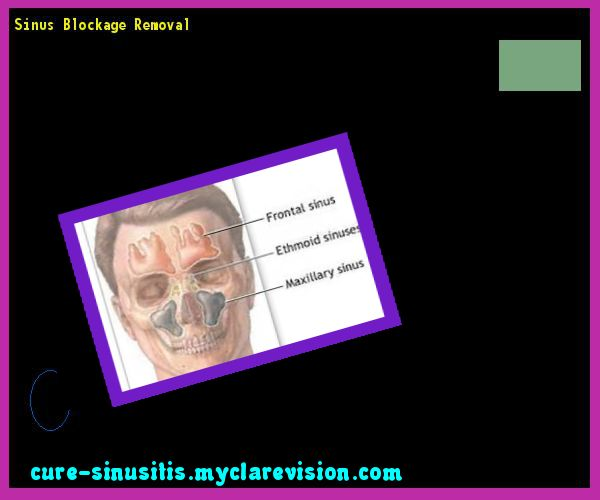 Sinus Blockage Removal 104620 - Cure Sinusitis